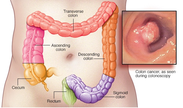Image Result For Stage  Colon Cancer Follow Up